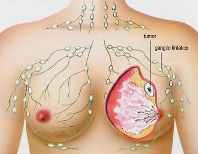 Menos radiación podría ser eficaz para el cáncer de mama