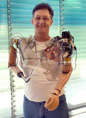 La operación que ayuda a los amputados a controlar las prótesis biónicas.