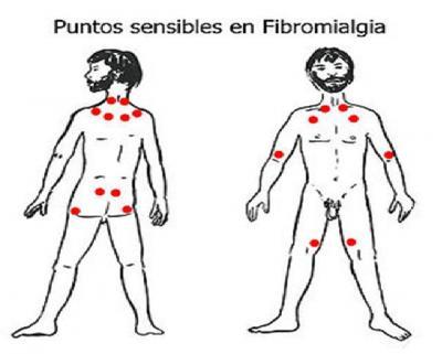 Signos visibles ayudan a detectar la fibromialgia