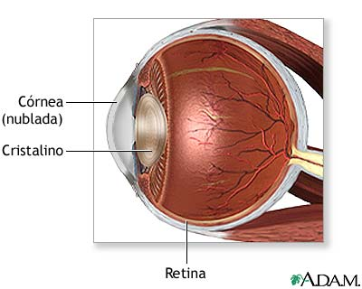 Un trasplante de células madre se muestra eficaz en un 90% de los casos para la ceguera corneal